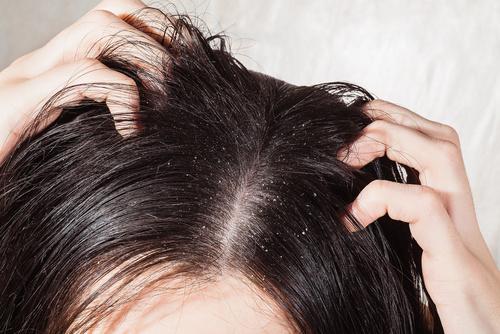 Łojotokowe zapalenie skóry. Jak je rozpoznać i jakie są jego przyczyny?